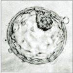 blastocyst.jpg