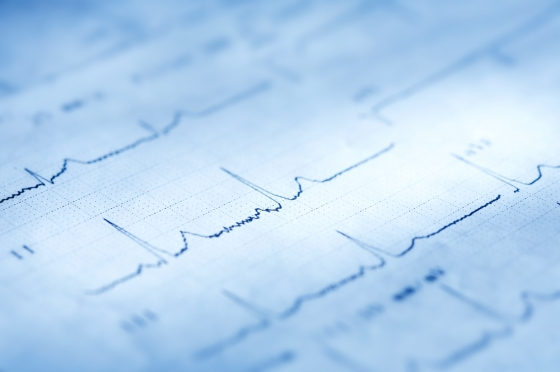 Photo of a electrocardiogram