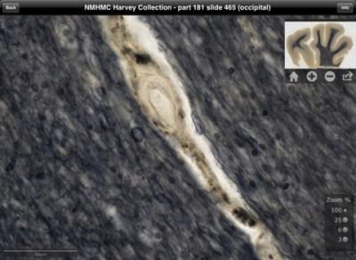 Einstein brain app