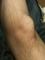 Busted Knee from Kinect