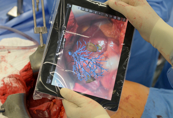 augmented-surgery