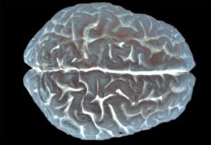 A human brain at work