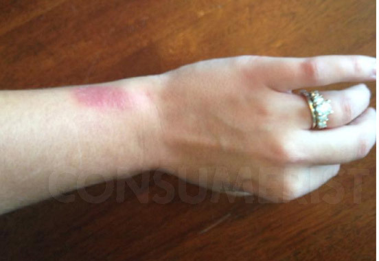 A rash brought on by Fitbit's Force.