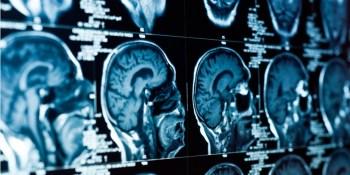 Lumiata raises $5M to further its optimized medical-care analytics
