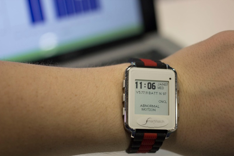 SmartMonitor SmartWatch Epilipsy