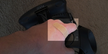 My first VR injury was painful and all my fault