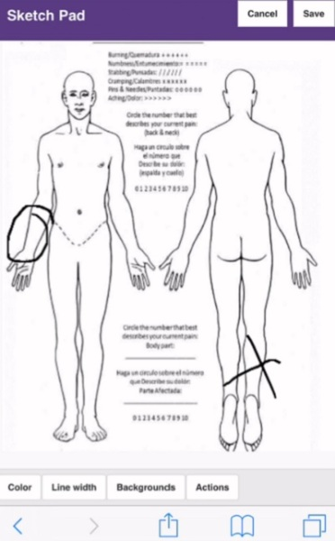 If someone is hurt, you can show where by circling the area with your finger in a Pulpstream form.