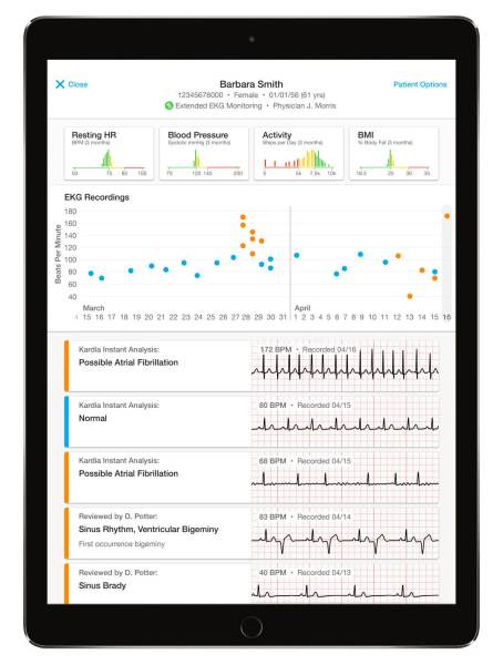 Example of AliveCor's EKG recording data.