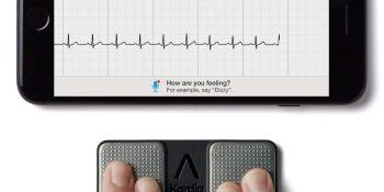 AliveCor raises $65 million to detect heart problems with AI