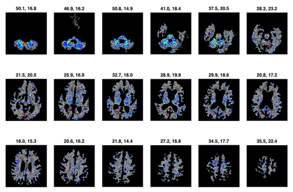 Systematic Review of miRNA as Biomarkers in Alzheimers
