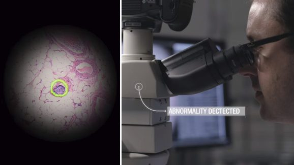 Google mixes AR and machine learning to help researchers find cancer cells.