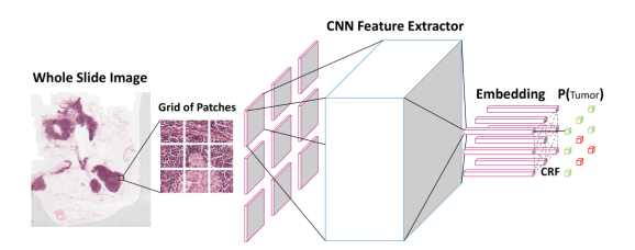 Baidu Research S Breast Cancer Detection Algorithm Outperforms Human Pathologists Dbxnetwork