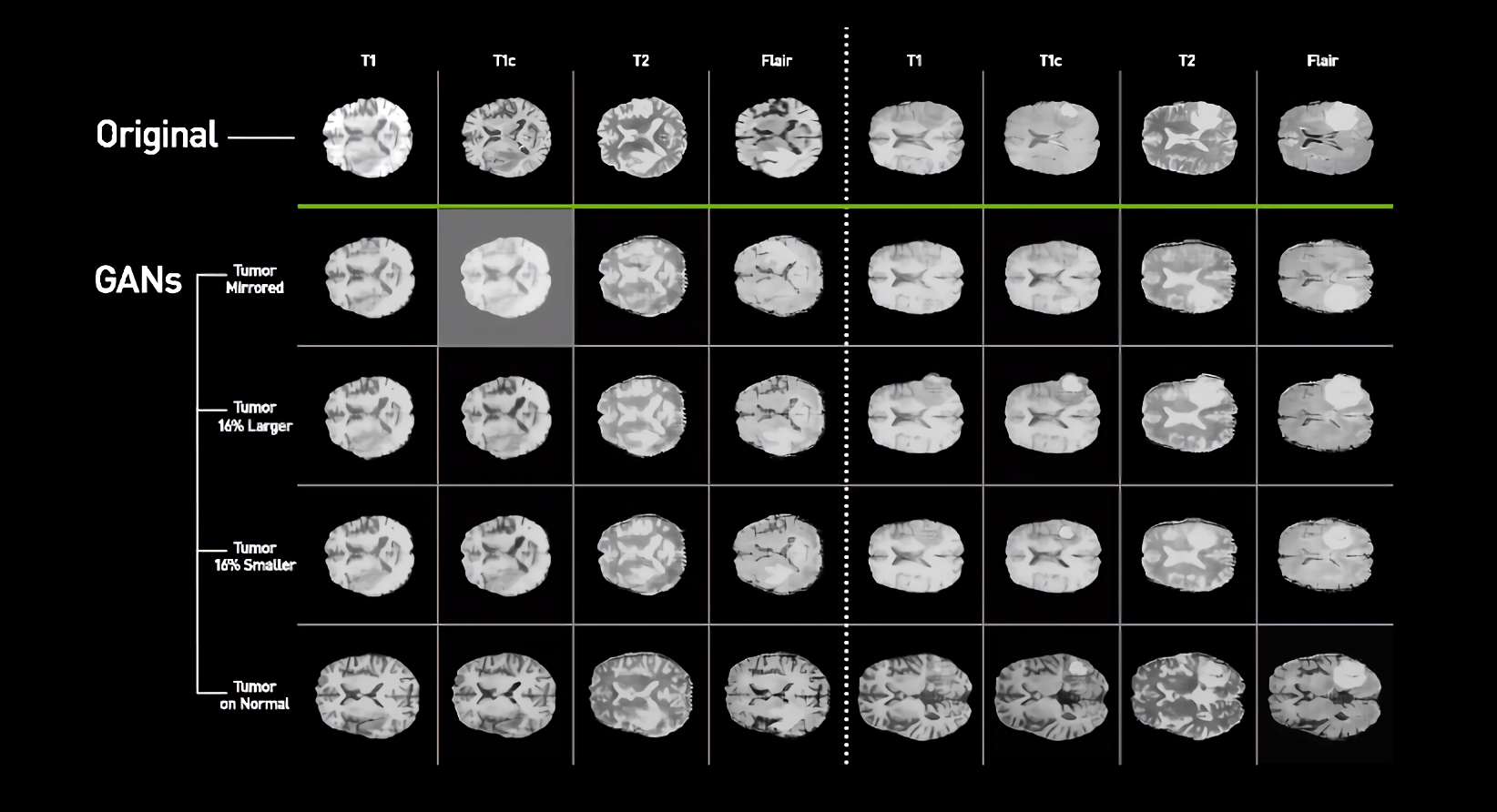 Nvidia researchers develop AI system that generates synthetic scans of brain cancer