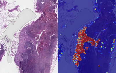 Google AI claims 99% accuracy in metastatic breast cancer