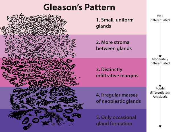 Gleason patterns