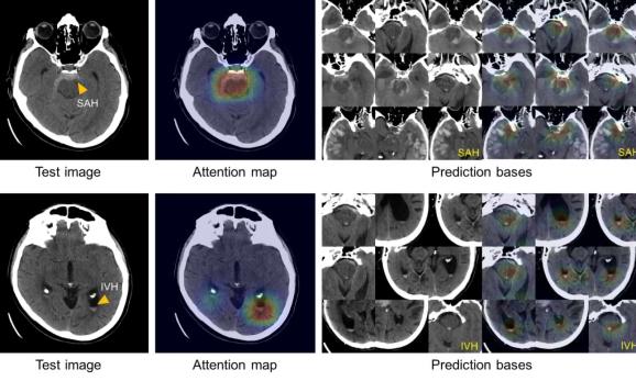 AI brain scan
