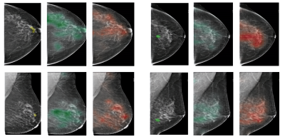 NYU open-sources breast cancer screening model trained on