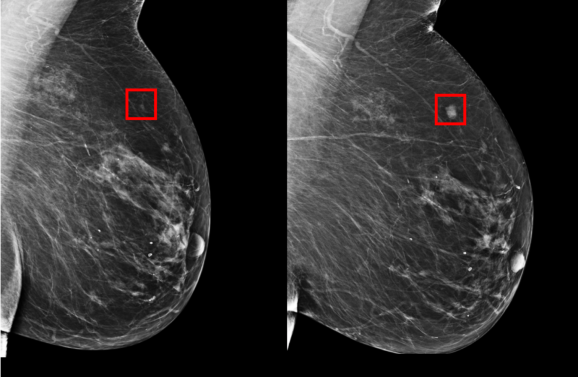 MIT CSAIL breast cancer AI