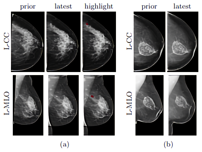 Ai Takes Advantage Of Existing Mammography Scans To Make A Cancer