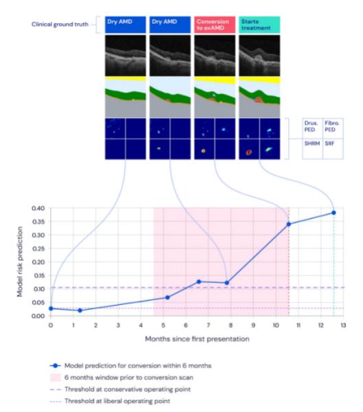 DeepMind macular degeneration AI