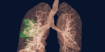 Major flaws found in machine learning for COVID-19 diagnosis