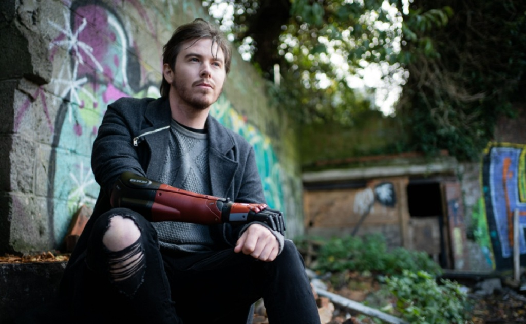 Daniel Melville has a bionic arm from Konami and Open Bionics.
