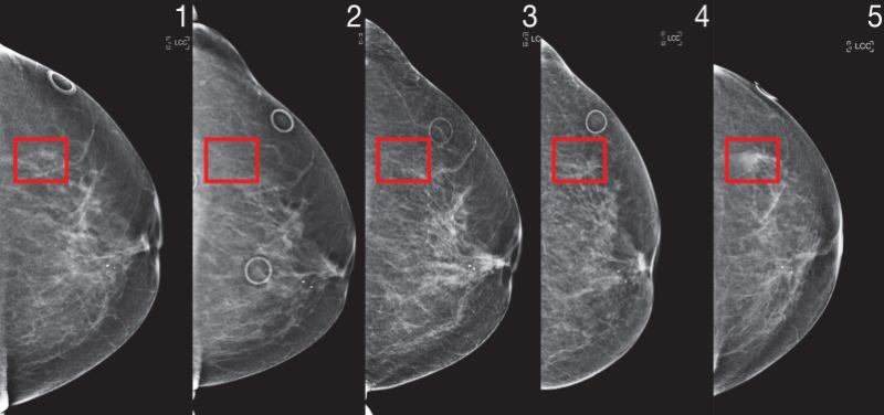 MIT CSAIL breast cancer